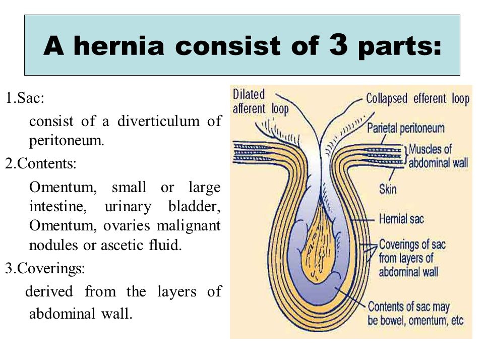 Anatomy of umbilical hernia