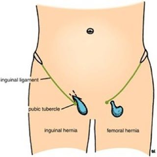 swollen testicle following hernia repair -Doctors Lounge