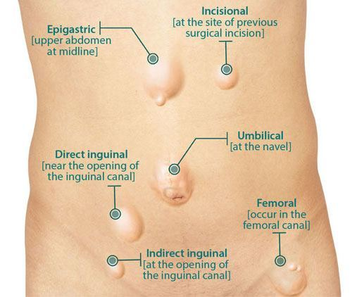 Direct Versus Indirect Inguinal Hernia Holistic Hernia